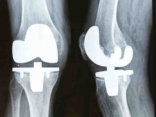 knee-replacement-implant-nggid03158-ngg0dyn-540x380x100-00f0w010c010r110f110r010t010