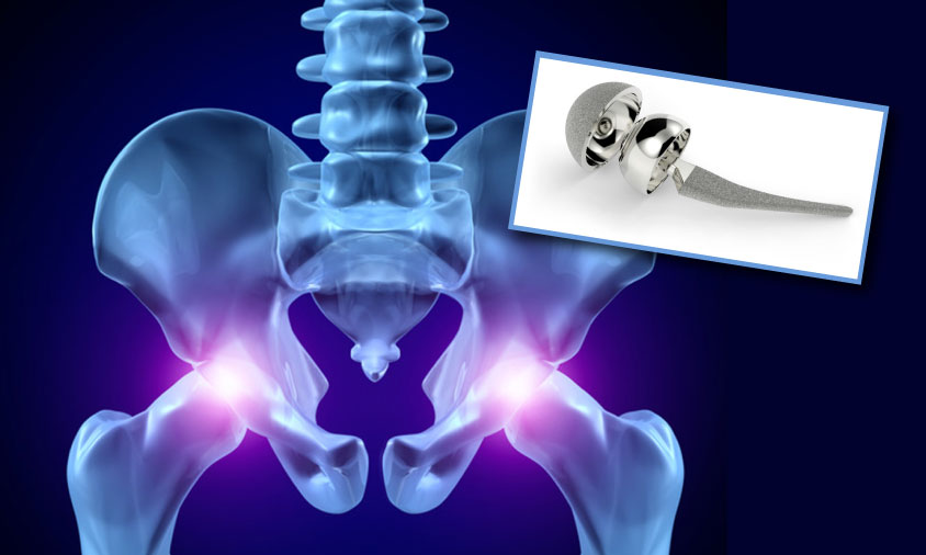 Hip Replacement Clark Law Firm